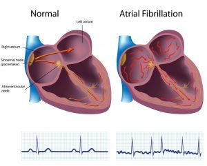 فیبریلاسیون-دهلیزی-،-علل-و-علائم